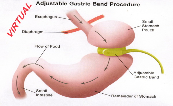 /Virtual Gastric Band